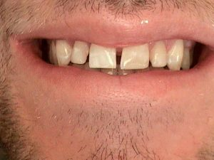 1_after_composite_fillings_